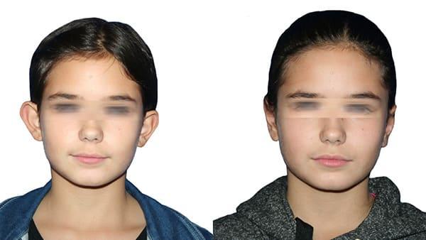 otoplastie paris avant apres otoplastie bilaterale otoplastie temps de cicatrisation dr bouhanna alexandre dr bouhanna paris