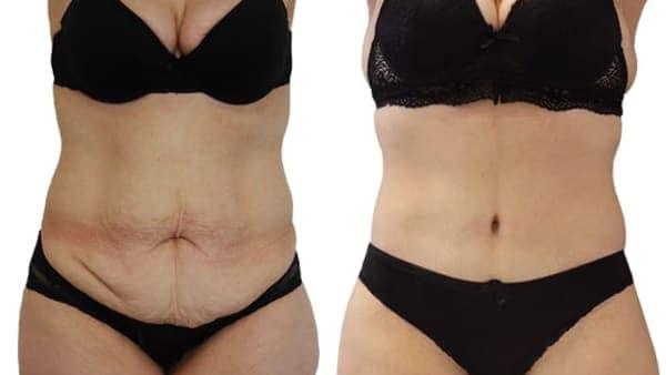 abodminoplastie paris plastie abdominale avant apres resultats docteur alexandre bouhanna chirurgien esthetique paris vincennes 94