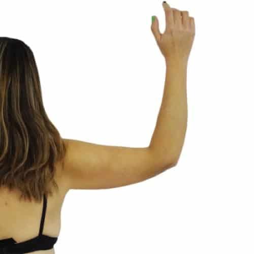 apres brachioplastie paris lifting des bras avant apres resultats docteur alexandre bouhanna chirurgien esthetique paris vincennes