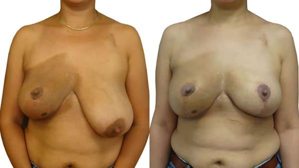 asymetrie mammaire paris symetrisation sein colaterale avant apres resultats docteur alexandre bouhanna chirurgien esthetique paris vincennes 94