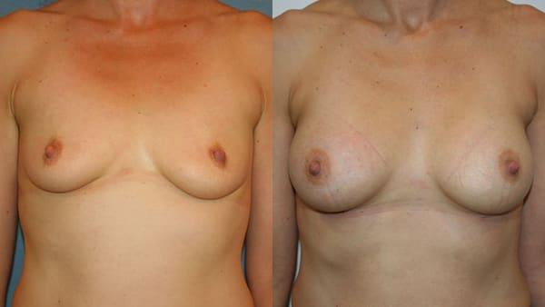 augmentation mammaire par implants protheses mammaires avant apres resultats docteur alexandre bouhanna chirurgien esthetique paris vincennes 94
