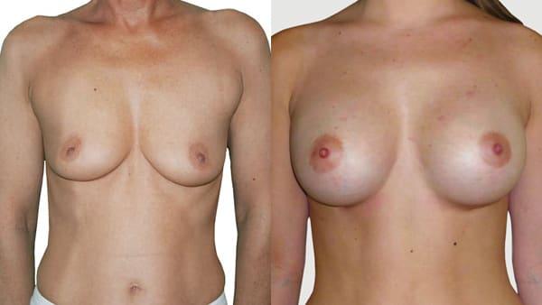 augmentation mammaire par protheses implants mammaires avant apres resultats docteur alexandre bouhanna chirurgien esthetique paris vincennes 94