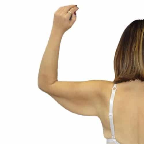avant brachioplastie paris lifting des bras avant apres resultats docteur alexandre bouhanna chirurgien esthetique paris vincennes