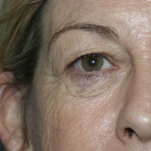blepharoplastie avant paupieres qui tombent docteur bouhanna blepharoplastie avant apres