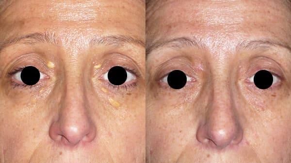 chirurgie cutanee paris chirurgie dermatologie visage avant apres resultats docteur alexandre bouhanna chirurgien esthetique paris vincennes 94