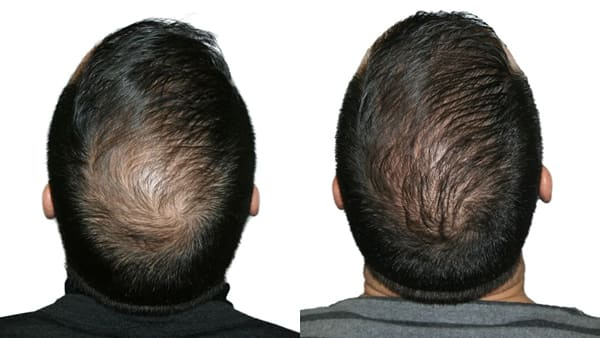 greffe de cheveux paris greffe capillaire avant apres resultats docteur alexandre bouhanna chirurgien esthetique paris vincennes 94