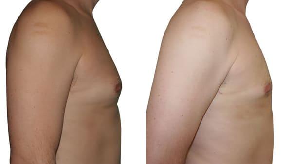 gynecomastie homme paris gynecomastie avant apres resultats docteur alexandre bouhanna chirurgien esthetique paris vincennes 94