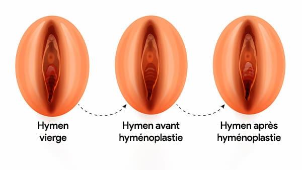 hymenoplastie paris hymenoplastie avant apres reconstruction de l hymen docteur alexandre bouhanna chirurgien esthetique paris vincennes 94