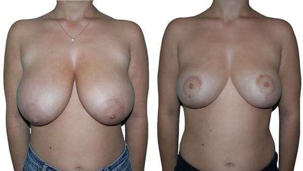 hypertrophie mammaire reduction mammaire avant apres resultats docteur alexandre bouhanna chirurgien esthetique paris vincennes 94