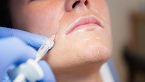 injection acide hyaluronique paris medecine esthetique docteur alexandre bouhanna chirurgien esthetique paris est vincennes