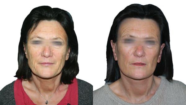 lifting cervico-facial paris lifting visage avant apres resultats docteur alexandre bouhanna chirurgien esthetique paris vincennes 94