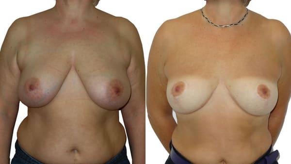 lifting mammaire paris cute de ptose mammaire avant apres resultats docteur alexandre bouhanna chirurgien esthetique paris vincennes 94