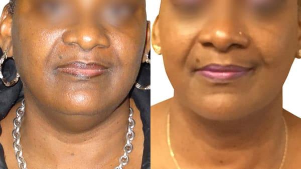 lipoaspiration visage paris lipoaspiration visage avant apres resultats docteur alexandre bouhanna chirurgien esthetique paris vincennes 94