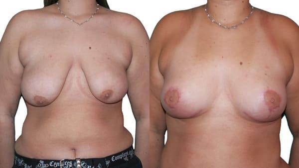 malformation mammaire paris malformation mammaire avant apres resultats docteur alexandre bouhanna chirurgien esthetique paris vincennes 94