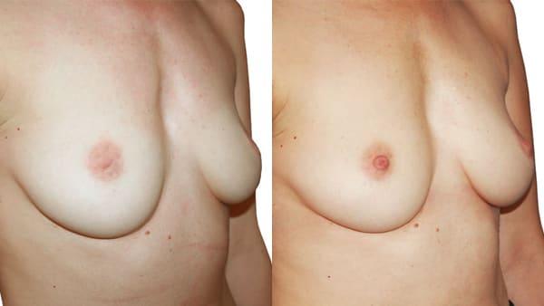 mamelons ombiliques paris mamelons invagines avant apres resultats docteur alexandre bouhanna chirurgien esthetique paris vincennes 94