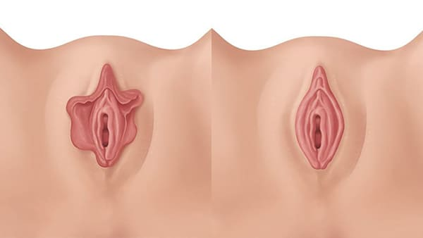 nymphoplastie paris nymphoplastie avant apres resultats docteur alexandre bouhanna chirurgien esthetique paris vincennes 94