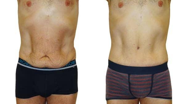 plastie abdominale paris abdominoplastie avant apres resultats docteur alexandre bouhanna chirurgien esthetique paris vincennes 94