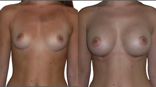 protheses mammaires paris implants mammaires avant apres resultats docteur alexandre bouhanna chirurgien esthetique paris vincennes 94