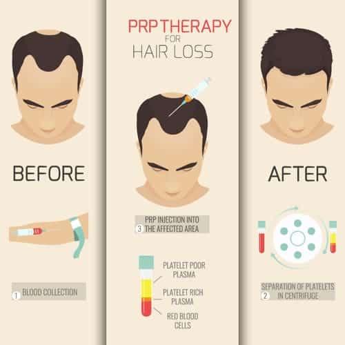 prp cheveux avant apres homme prp avant apres cheveux docteur alexandre bouhanna chirurgien esthetique paris vincennes 94