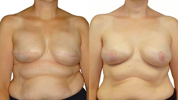 reconstruction de la plaque areolaire mamelon avant apres resultats docteur alexandre bouhanna chirurgien esthetique paris vincennes 94