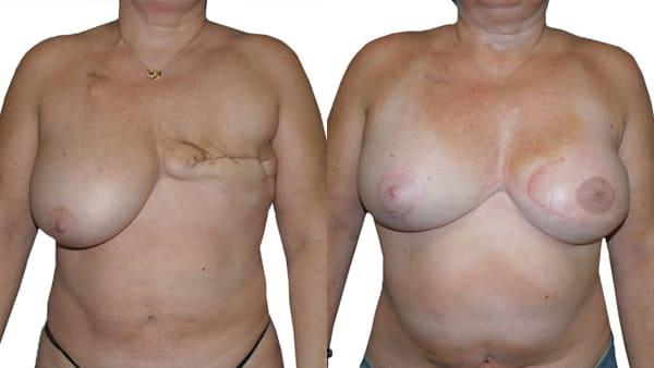 reconstruction mammaire par lambeau grand dorsal avant apres resultats docteur alexandre bouhanna chirurgien esthetique paris vincennes 94