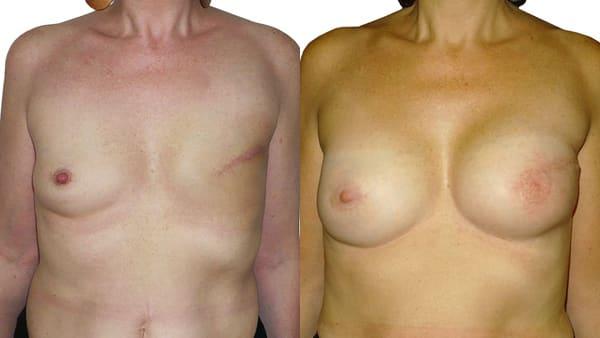 reconstruction mammaire par prothese mammaire avant apres resultats docteur alexandre bouhanna chirurgien esthetique paris vincennes 94