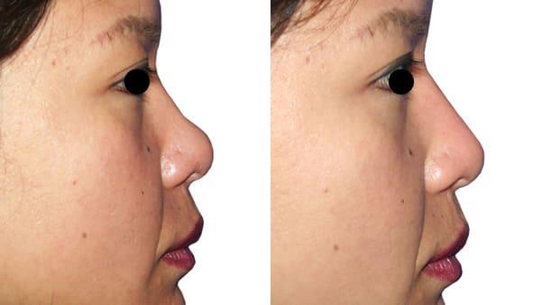 rhinoplastie paris rhinoplastie avant apres resultats docteur alexandre bouhanna chirurgien esthetique paris vincennes 94