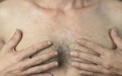 Adipomastie ou gynecomastie : comment savoir ?