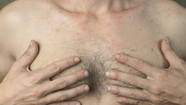 adipomastie ou gynecomastie dr alexandre bouhanna chirurgien esthetique paris est vincennes
