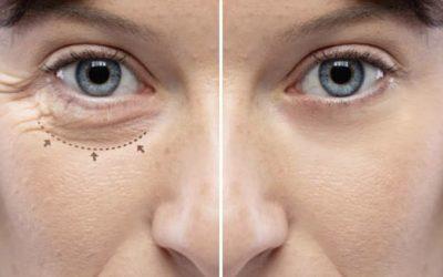 Les cicatrices après blépharoplastie sont-elles visibles ?