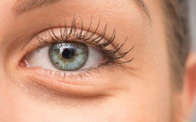 L'acide hyaluronique pour enlever les cernes sous les yeux