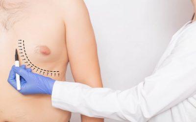Opération gynécomastie : prix & prise en charge par la sécurité sociale ?