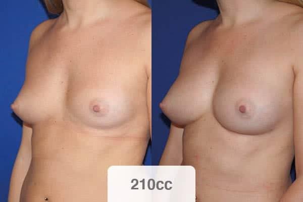 avant apres lipofilling mammaire 210 cc injection graisse dans les seins chirurgien esthetique paris vincennes docteur alexandre bouhanna avis
