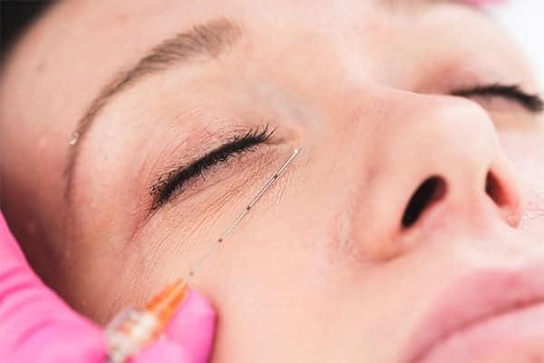 botox ou acide hyaluronique cernes injections prix cernes acide hyaluronique avant apres yeux chirurgien esthetique paris vincennes docteur alexandre bouhanna avis