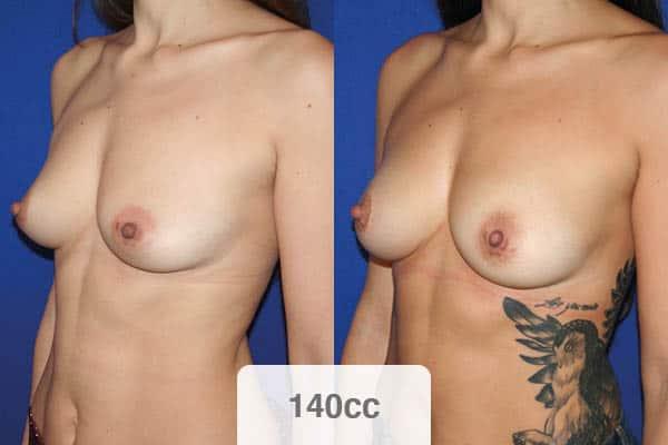 lipofilling mammaire 140 cc avant apres prix chirurgien esthetique paris vincennes docteur alexandre bouhanna avis