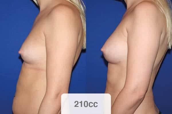 lipofilling mammaire avis photo 210 cc cicatrice chirurgien esthetique paris vincennes docteur alexandre bouhanna avis