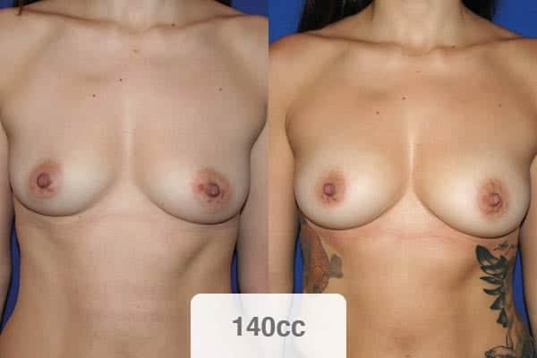 resultats lipofilling mammaire avis 140 cc remboursement chirurgien esthetique paris vincennes docteur alexandre bouhanna avis